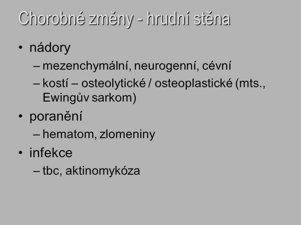 Chorobné změny - hrudní stěna nádory –mezenchymální, neurogenní, cévní –kostí – osteolytické / osteoplastické (mts., Ewingův sarkom) poranění –hematom