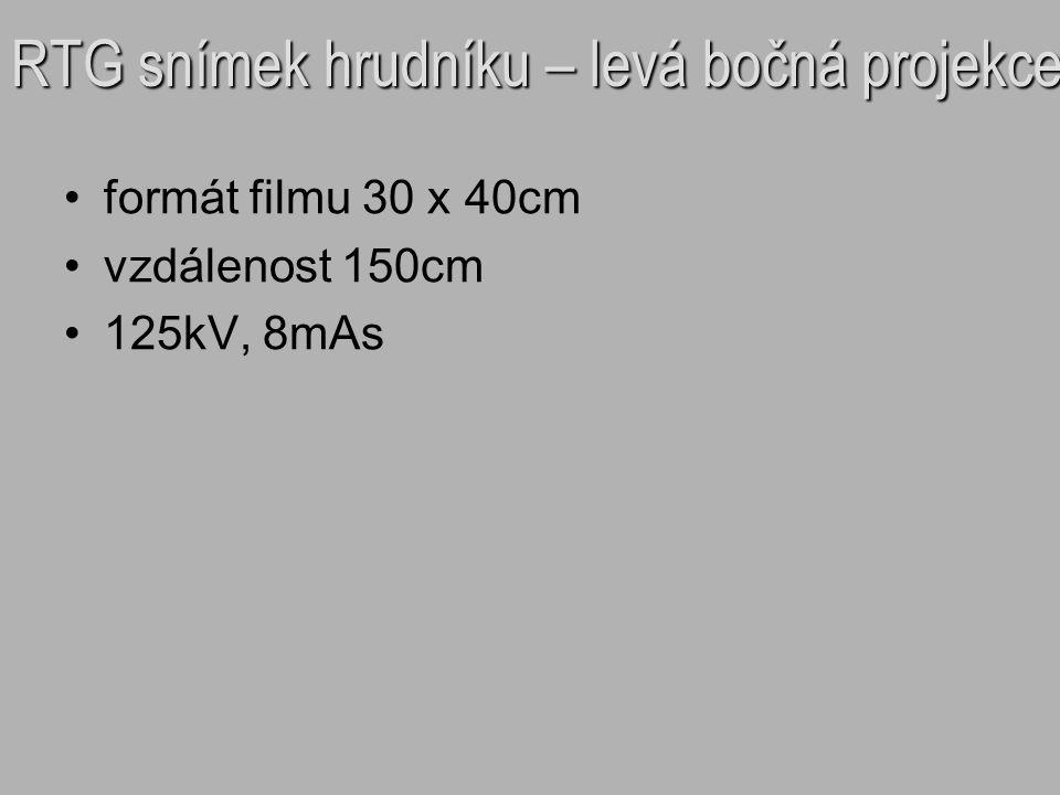 RTG snímek hrudníku – levá bočná projekce formát filmu 30 x 40cm vzdálenost 150cm 125kV, 8mAs