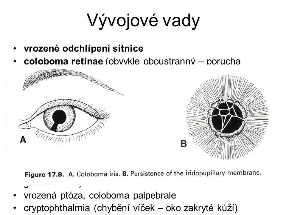 Vývojové vady vrozené odchlípení sítnice coloboma retinae (obvykle oboustranný – porucha uzavírání fissura optica) cyclopia (1 oko), synophthalmia (sp