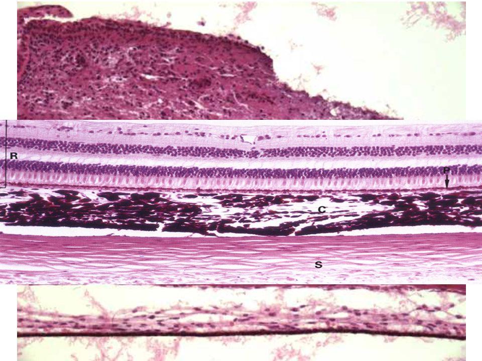Tunica vasculosa (media) Cévnatka = Choroidea lamina suprachoroidea (= lamina fusca sclerae) spatium perichoroideum lamina vasculosa (choroidální stro