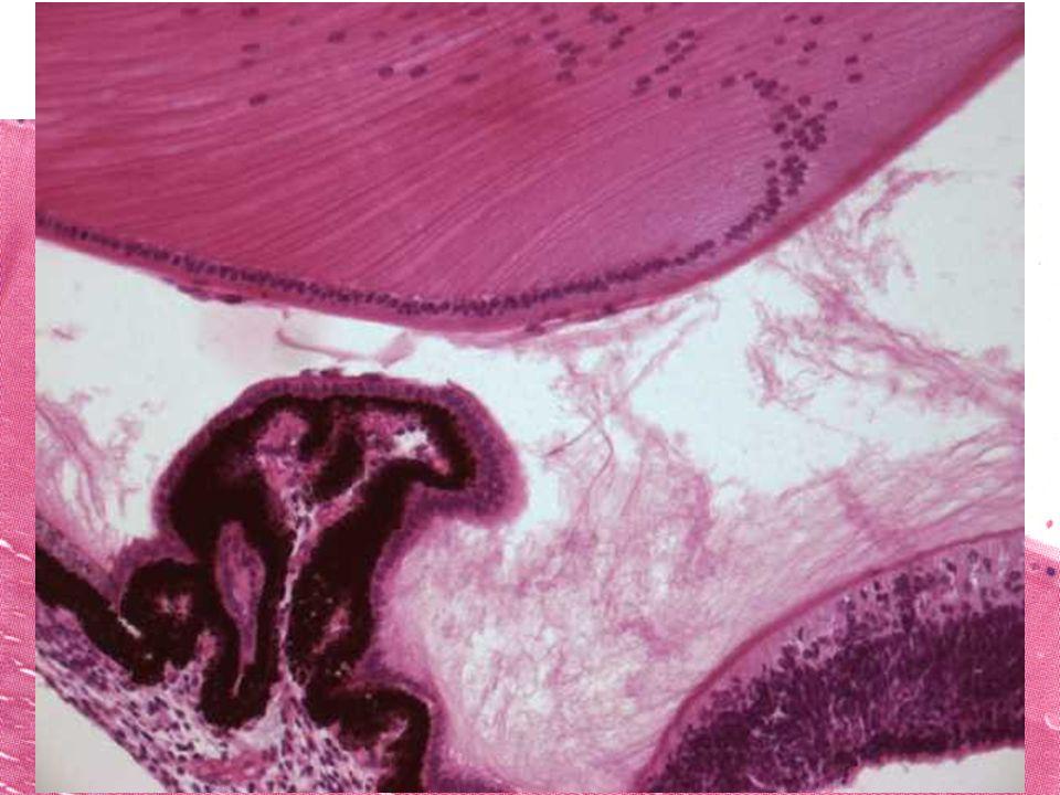 Čočka (lens) transparentní bikonvexní bezcévný útvar pouzdro – podobná bazální lamině čočkový epitel – jednovrstevný kubický –jen na přední ploše čočk