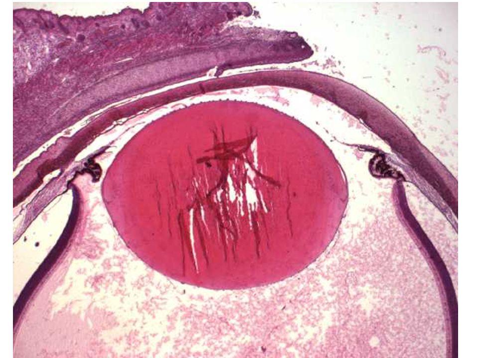 Oční komory = Camerae bulbi sklivcová komora (camera postrema s. vitrea) –mezi řasnatým tělesem, čočkou a sítnicí –obsahuje sklivec –spatium retrozonu
