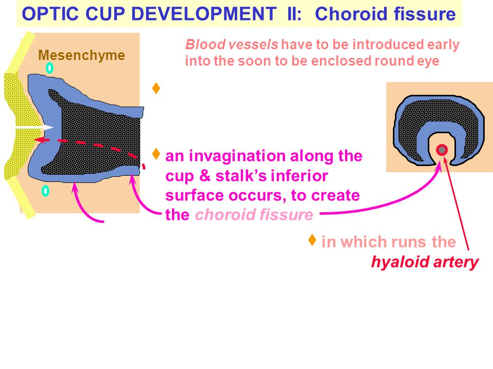 OPTIC CUP DEVELOPMENT II: Choroid fissure Together with the invagination centrally at the end of the optic cup, Mesenchyme Blood vessels have to be in