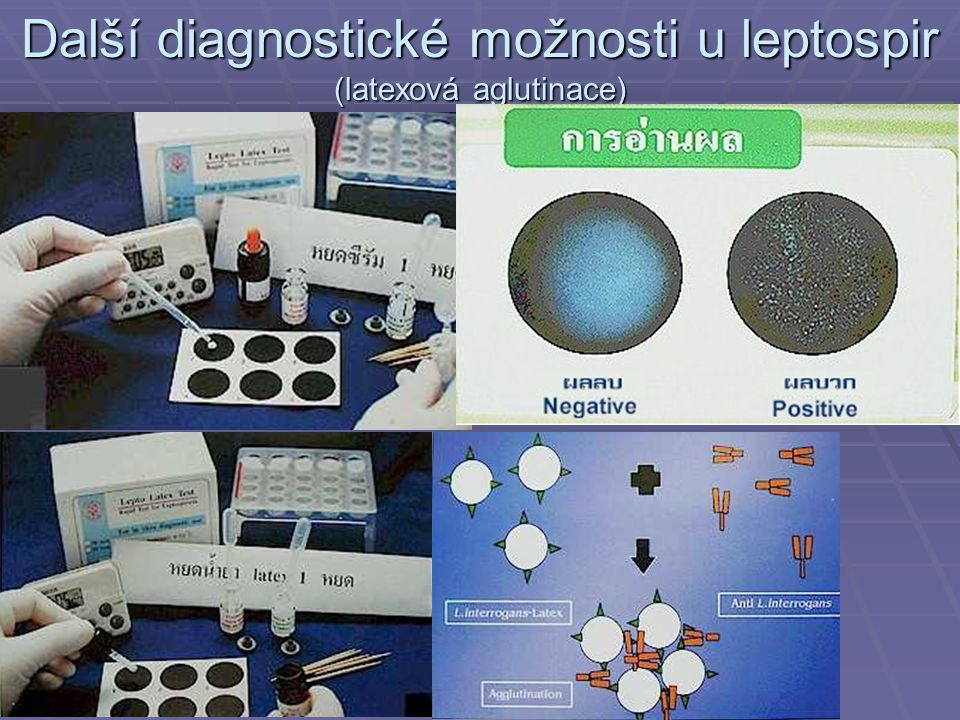 Další diagnostické možnosti u leptospir (latexová aglutinace)