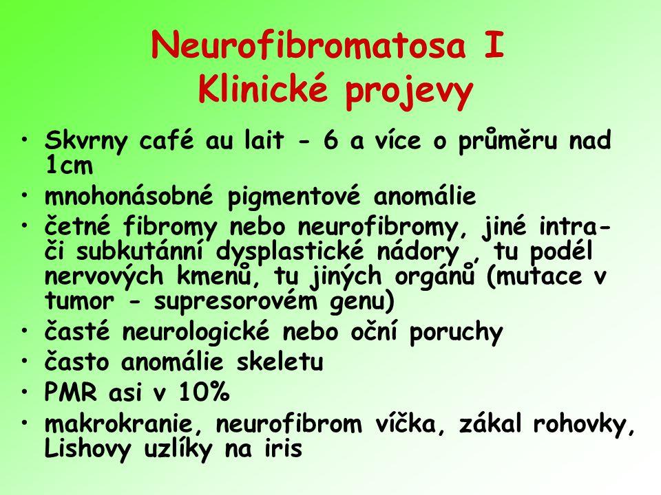 Neurofibromatosa I Klinické projevy Skvrny café au lait - 6 a více o průměru nad 1cm mnohonásobné pigmentové anomálie četné fibromy nebo neurofibromy,