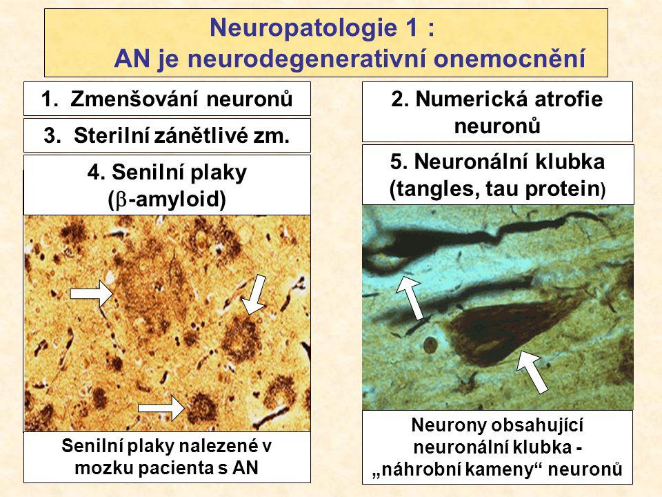 Neuropatologie 1 : AN je neurodegenerativní onemocnění 2. Numerická atrofie neuronů 1. Zmenšování neuronů Senilní plaky nalezené v mozku pacienta s AN