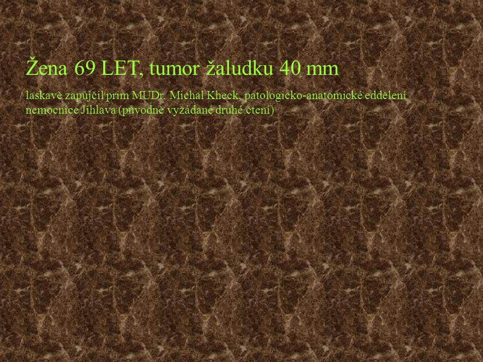 Žena 69 LET, tumor žaludku 40 mm laskavě zapůjčil prim MUDr. Michal Kheck, patologicko-anatomické eddělení nemocnice Jihlava (původně vyžádané druhé č