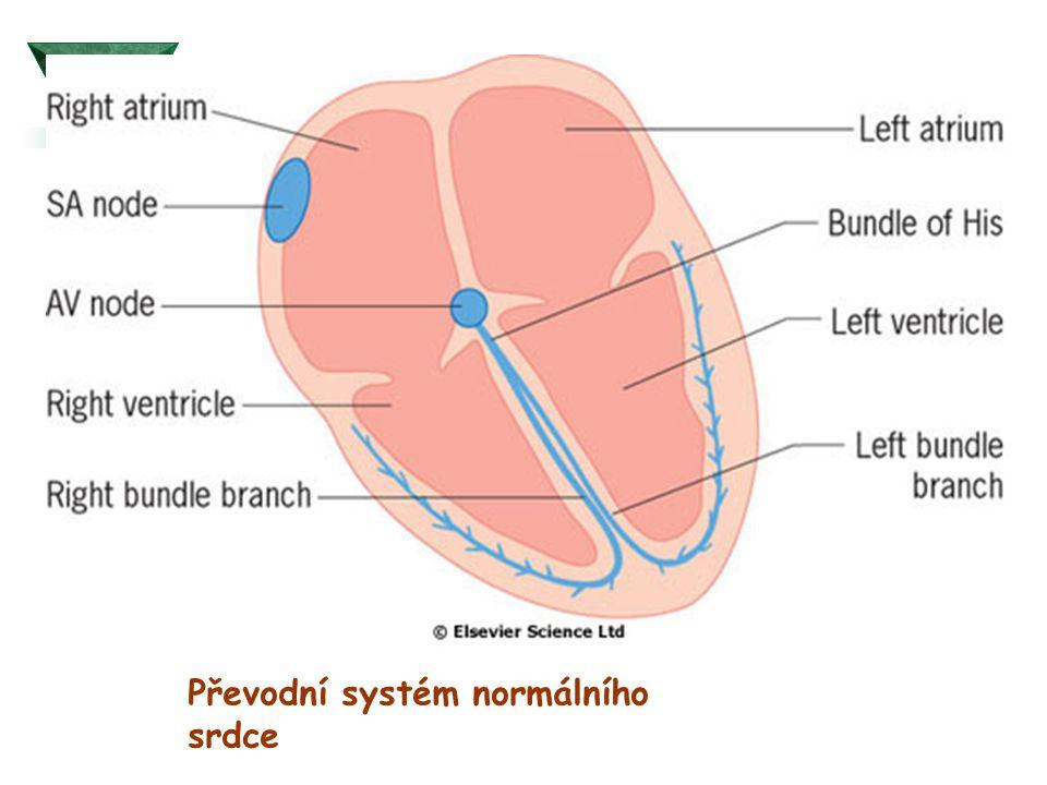 Převodní systém normálního srdce