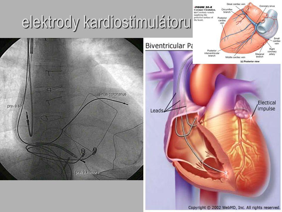 elektrody kardiostimulátoru sinus coronarius pravá komora pravá síň
