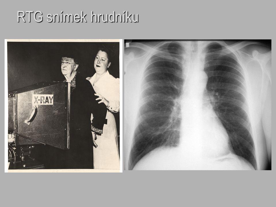 zvětšení jednotlivých srdečních oddílů – levá síň příčiny: - objemové přetížení /mitrální insuficience/ - tlakové přetížení /mitrální stenóza, myxom levé síně/