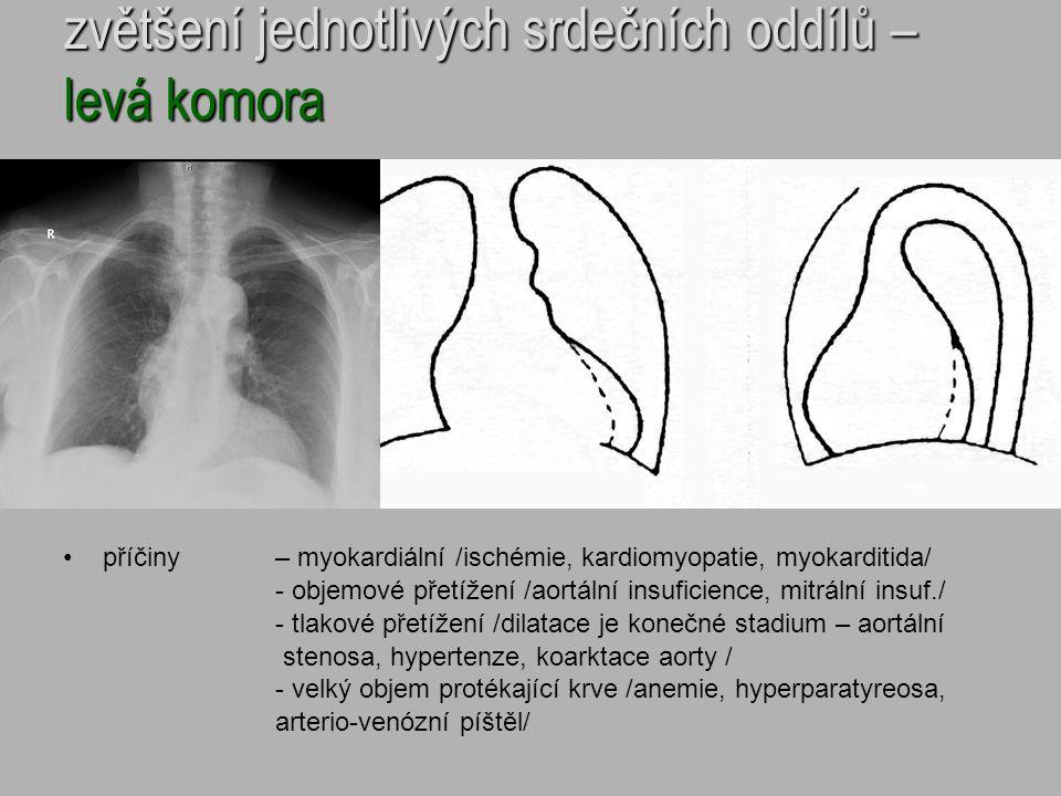 zvětšení jednotlivých srdečních oddílů – levá komora příčiny – myokardiální /ischémie, kardiomyopatie, myokarditida/ - objemové přetížení /aortální in