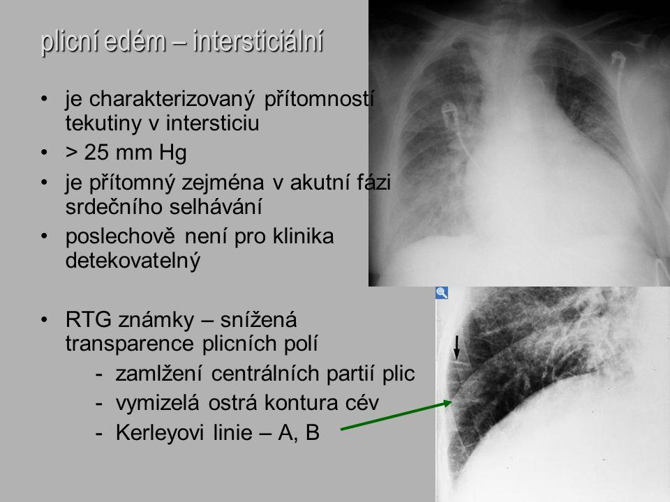 plicní edém – intersticiální je charakterizovaný přítomností tekutiny v intersticiu > 25 mm Hg je přítomný zejména v akutní fázi srdečního selhávání p
