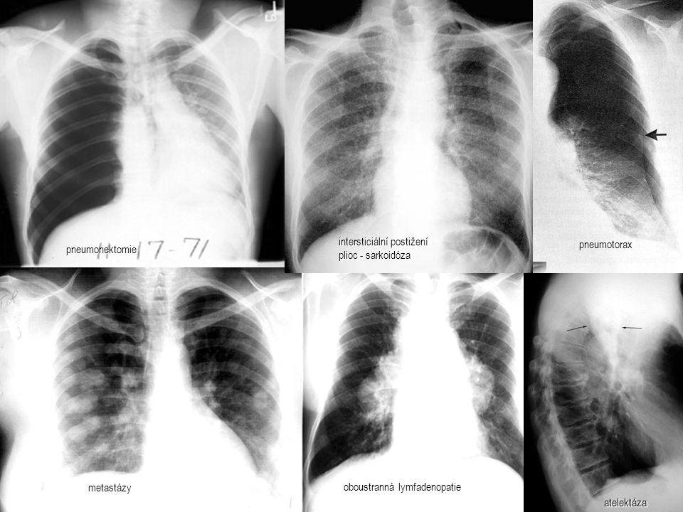 pneumotorax metastázy oboustranná lymfadenopatie intersticiální postižení plioc - sarkoidóza pneumonektomie atelektáza