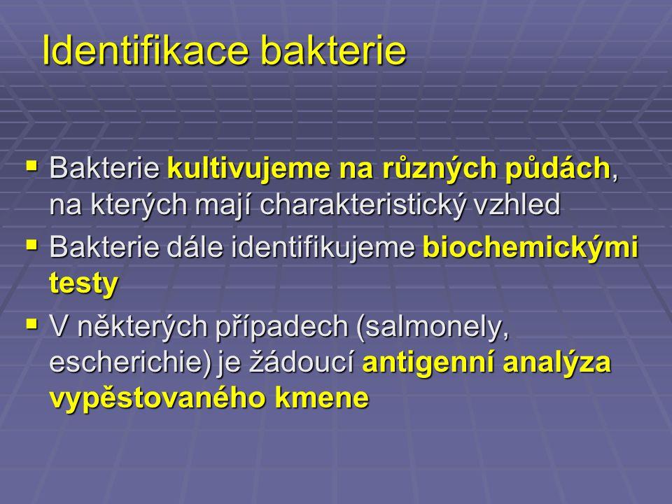 Proteus mirabilis http://www.icbm.de/pmbio/mikrobiologischer-garten/pics/pat05.jpg