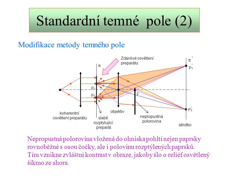 CSLO - tomografie Jde o vyvolání umělého kontrastu (analogie metody temného pole).