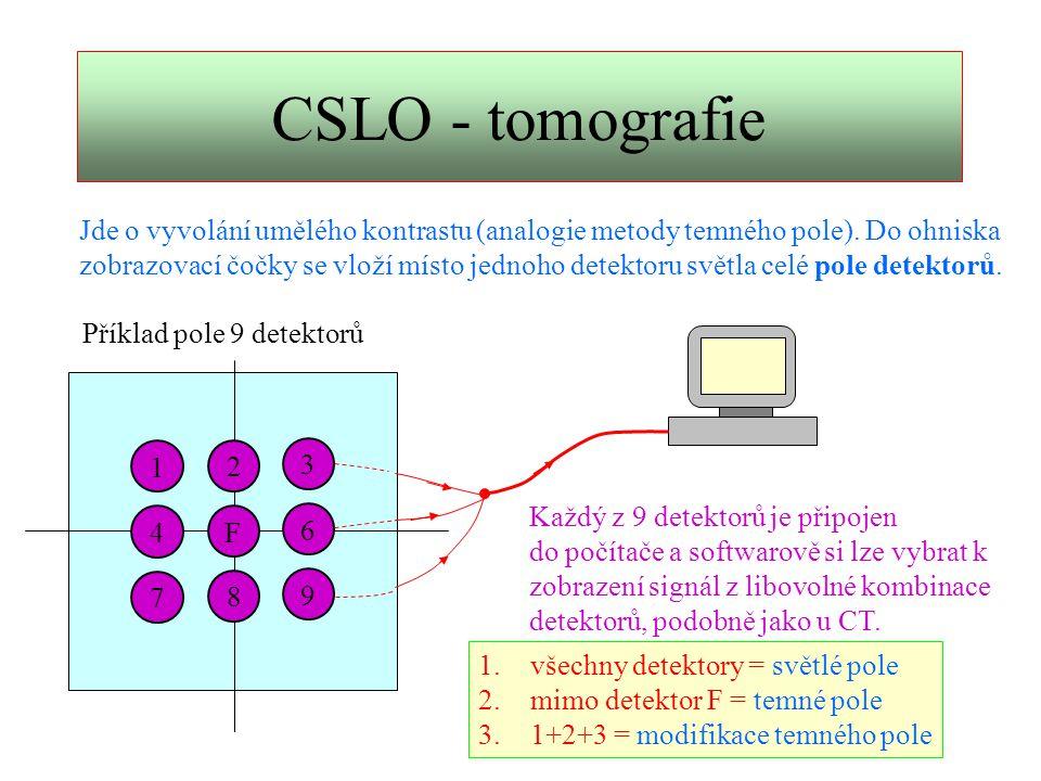 CSLO – 3D topografie (1)   ´´ 2´2´ F P1P1 P2P2 P2´P2´ P1´P1´ P 1 ´ rozostřen v  2 ´ P 2 ´ rozostřen v   ´ Čočka zobrazí ostře předmětovou rovinu na svou obrazovou rovinu.