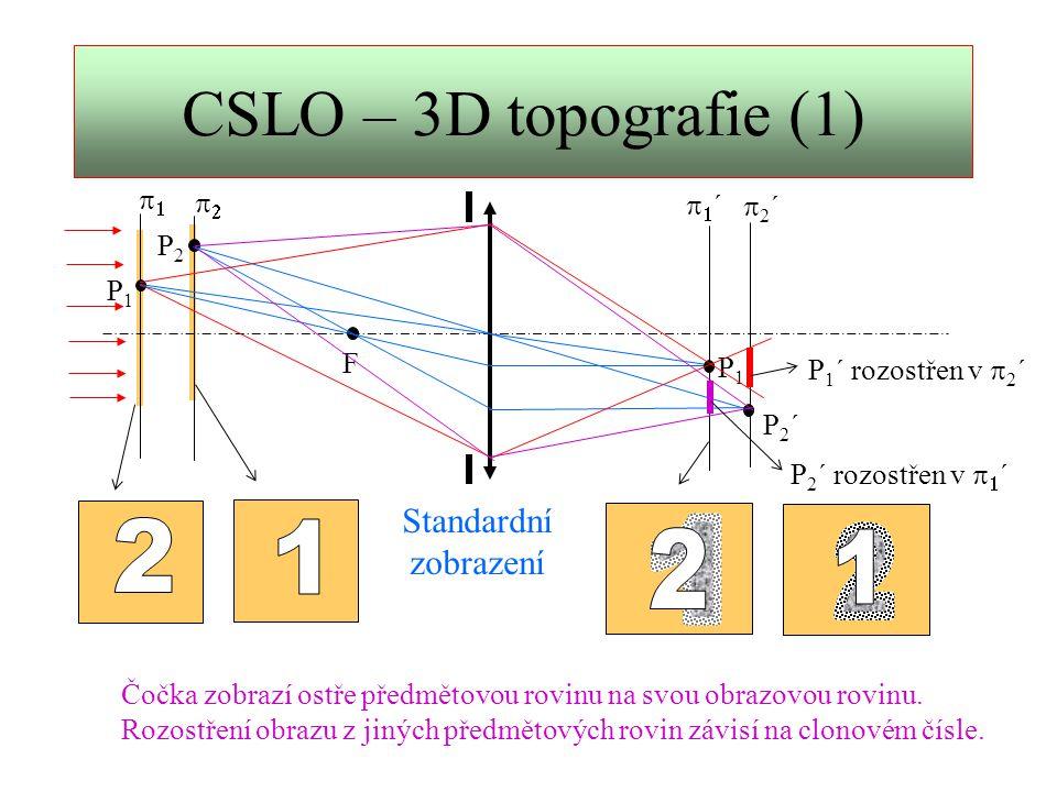 CSLO – 3D topografie (2) ……  ´´ 1 2 3 4 …..