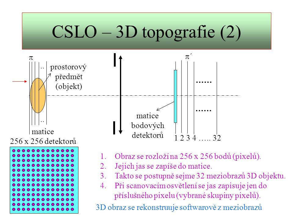 CSLO - konfokální temné pole  ´´ P1P1 otvor detektor scanovací zařízení F  P2P2 ´´ 1.Zobrazovaný objekt je 3D.