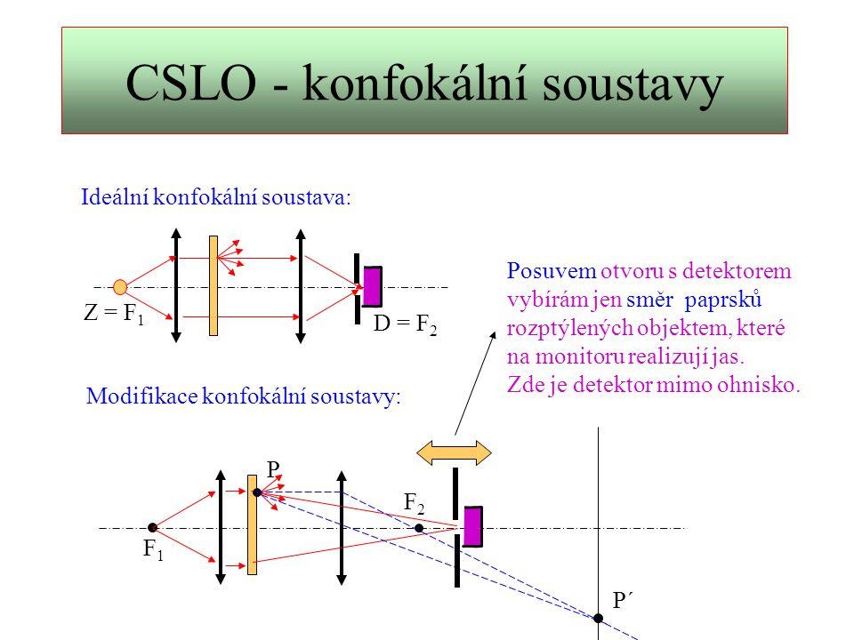 Konfokální scanovací oftalmoskop K zobrazení využívá vlastně různých modifikací metody temného pole.