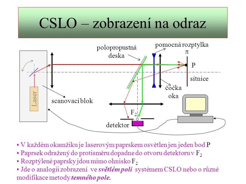 CSLO - zobrazení nervové sítě Využije se dvojlomu nervových vláken 1.Lineárně polarizovaný paprsek projde nervovým vláknem tam a zpět.