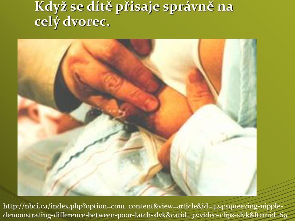 Když se dítě přisaje správně na celý dvorec. http://nbci.ca/index.php?option=com_content&view=article&id=424:squeezing-nipple- demonstrating-differenc