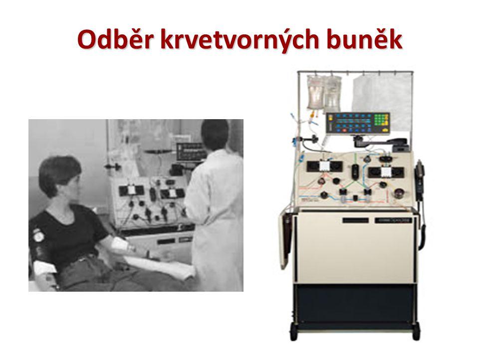 Odběr krvetvorných buněk