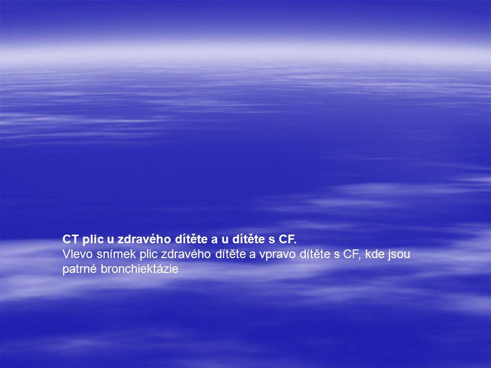 CT plic u zdravého dítěte a u dítěte s CF.
