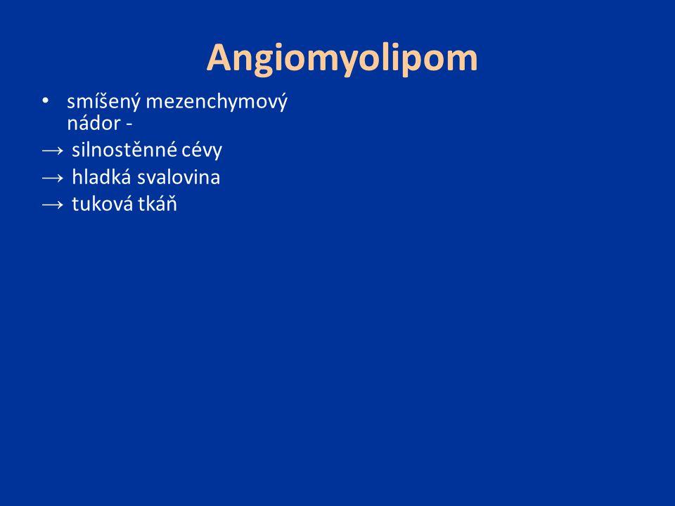 Angiomyolipom smíšený mezenchymový nádor - → silnostěnné cévy → hladká svalovina → tuková tkáň