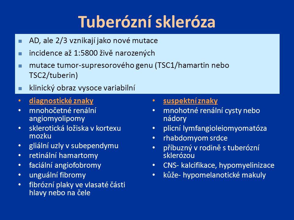 Tuberózní skleróza diagnostické znaky mnohočetné renální angiomyolipomy sklerotická ložiska v kortexu mozku gliální uzly v subependymu retinální hamar