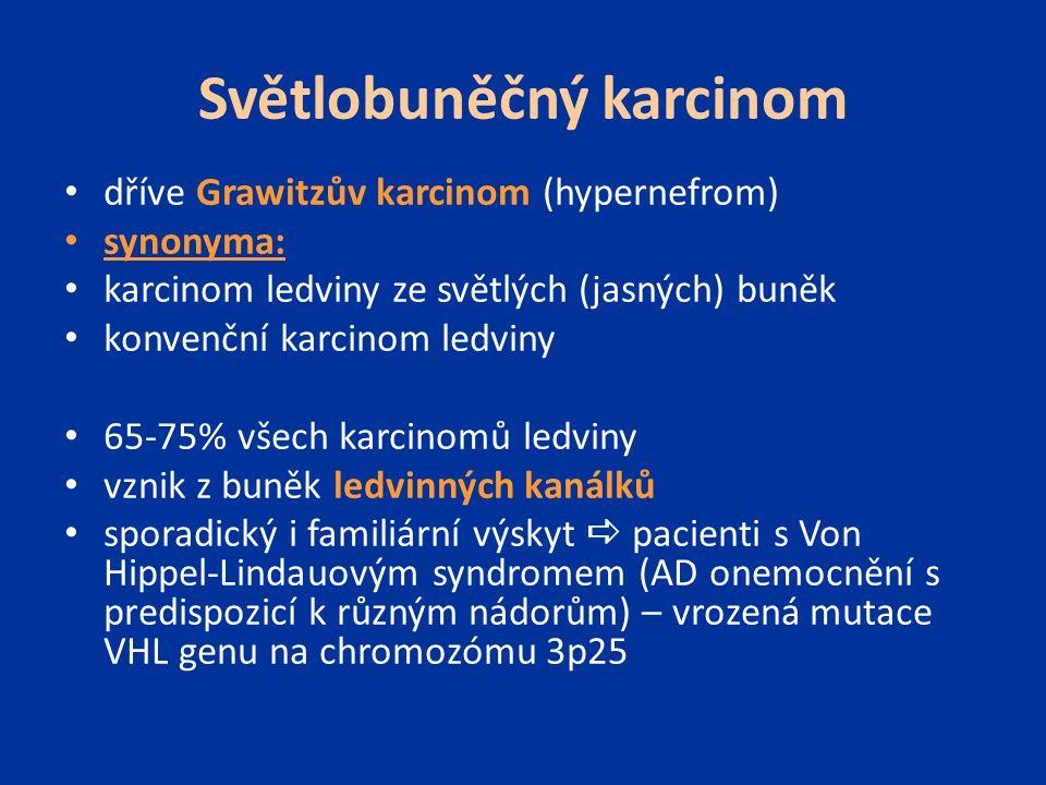 Světlobuněčný karcinom dříve Grawitzův karcinom (hypernefrom) synonyma: karcinom ledviny ze světlých (jasných) buněk konvenční karcinom ledviny 65-75%