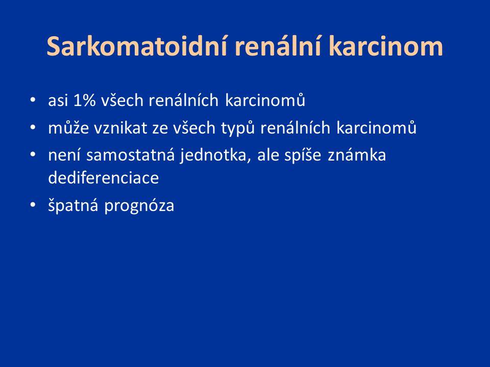 Sarkomatoidní renální karcinom asi 1% všech renálních karcinomů může vznikat ze všech typů renálních karcinomů není samostatná jednotka, ale spíše zná