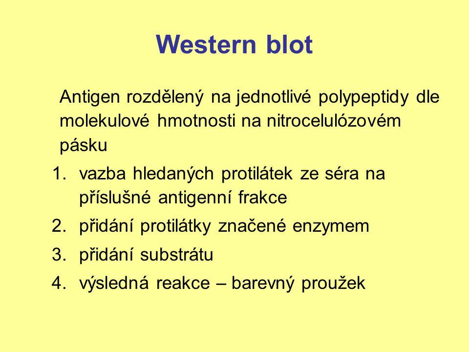 Western blot Antigen rozdělený na jednotlivé polypeptidy dle molekulové hmotnosti na nitrocelulózovém pásku 1.vazba hledaných protilátek ze séra na př