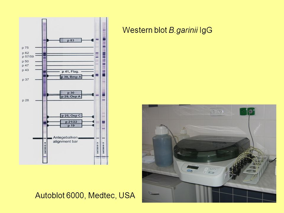Autoblot 6000, Medtec, USA Western blot B.garinii IgG