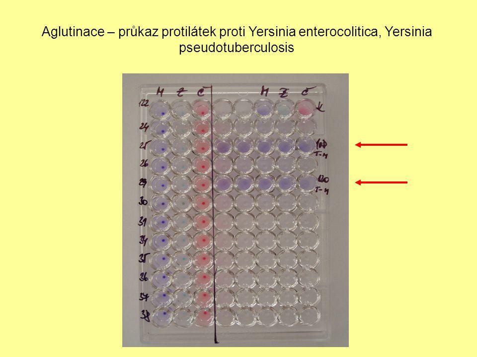 Aglutinace – průkaz protilátek proti Yersinia enterocolitica, Yersinia pseudotuberculosis