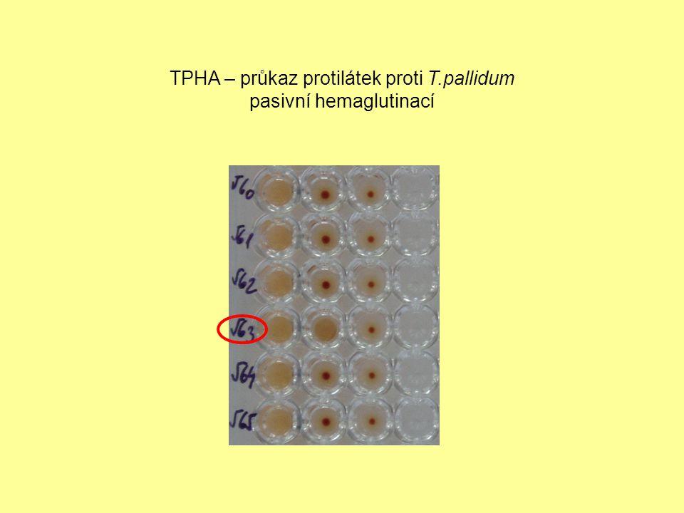 Komplement fixační reakce komplex antigen + hledaná protilátka komplement indikátorový neboli hemolytický systém (beraní erytrocyty senzibilizované králičí protilátkou) zábrana hemolýzyhemolýza pozitivní reakcenegativní reakce