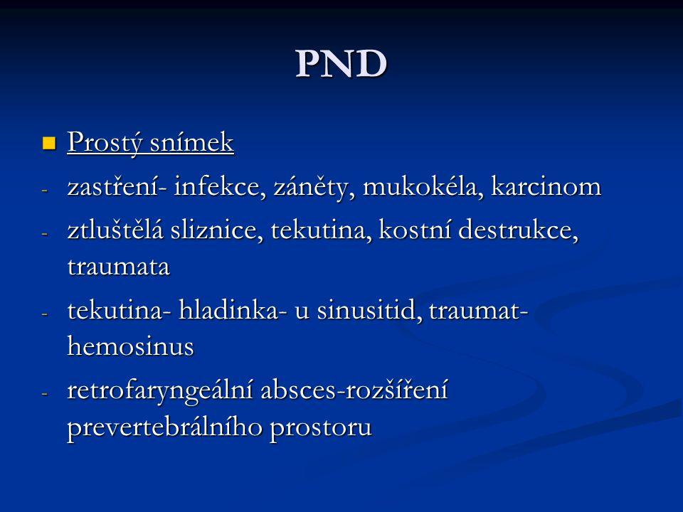 PND Prostý snímek Prostý snímek - zastření- infekce, záněty, mukokéla, karcinom - ztluštělá sliznice, tekutina, kostní destrukce, traumata - tekutina-