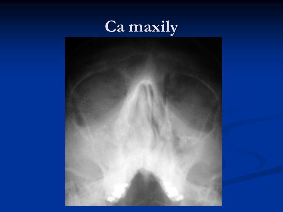 Ca maxily