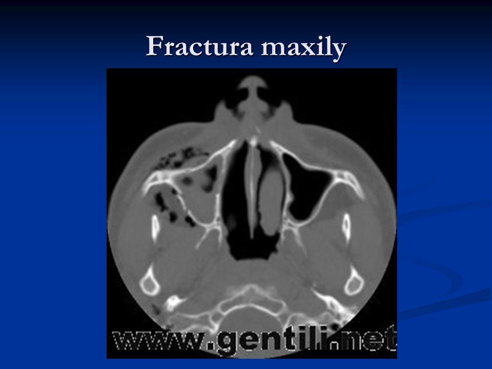 Fractura maxily