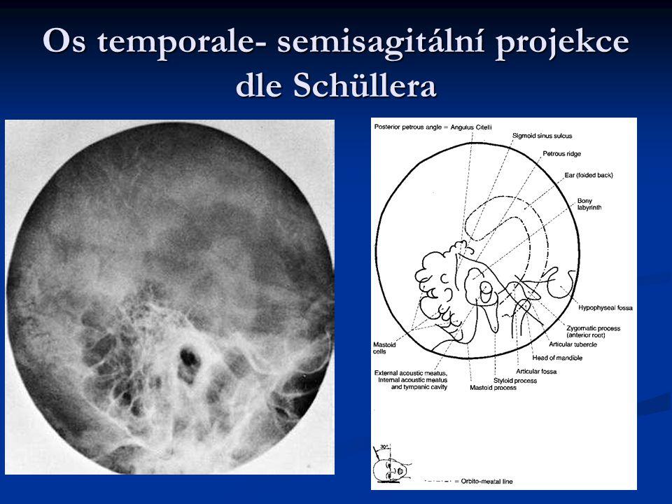 Os temporale- semisagitální projekce dle Schüllera