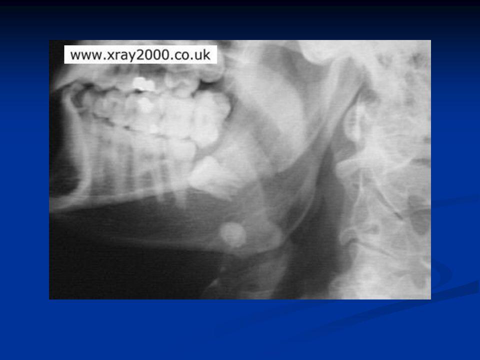 Spánková kost - CT a.vestibule b. lateral semicircular canal c.