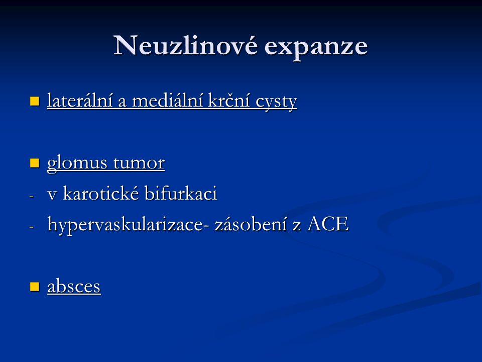 Neuzlinové expanze laterální a mediální krční cysty laterální a mediální krční cysty glomus tumor glomus tumor - v karotické bifurkaci - hypervaskular