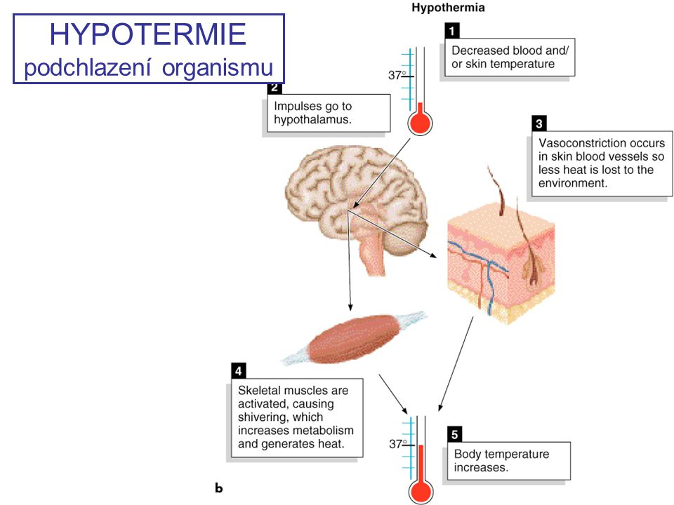 HYPOTERMIE podchlazení organismu