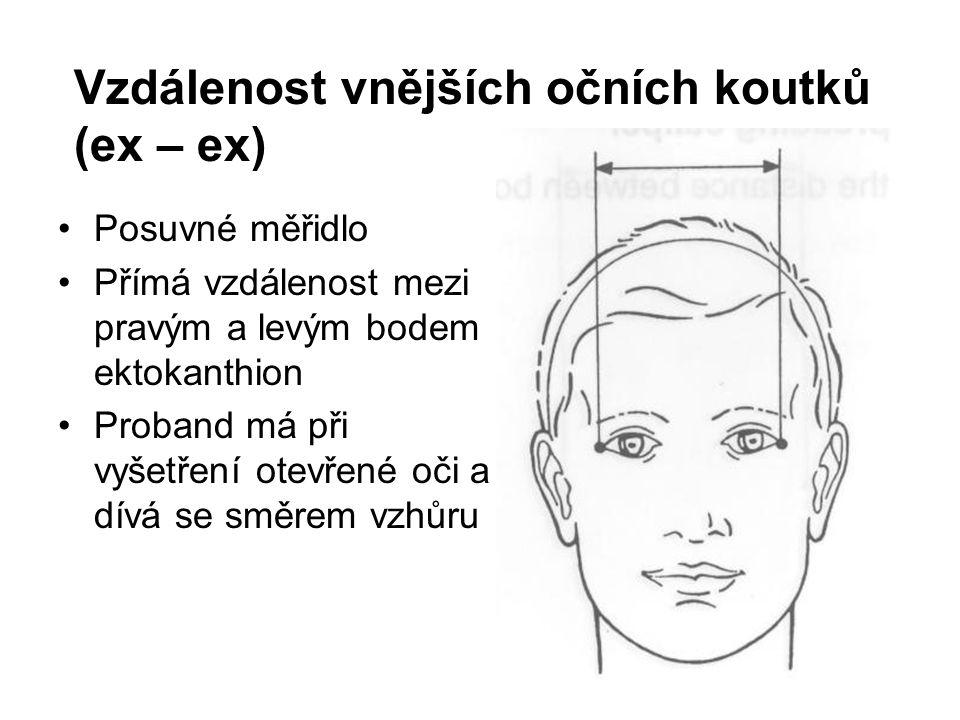 Vzdálenost vnějších očních koutků (ex – ex) Posuvné měřidlo Přímá vzdálenost mezi pravým a levým bodem ektokanthion Proband má při vyšetření otevřené oči a dívá se směrem vzhůru