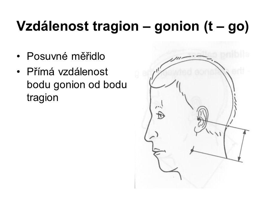 Vzdálenost tragion – gonion (t – go) Posuvné měřidlo Přímá vzdálenost bodu gonion od bodu tragion