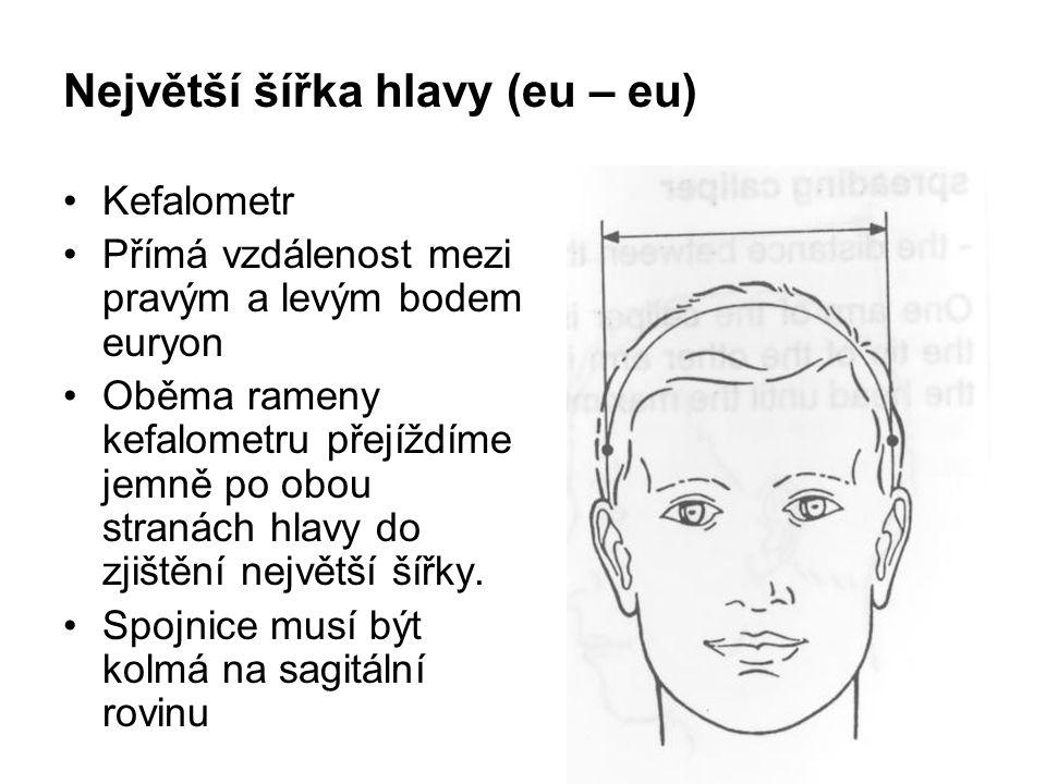 Nejmenší šířka čela (ft – ft) Kefalometr Přímá vzdálenost mezi pravým a levým bodem frontotemporale