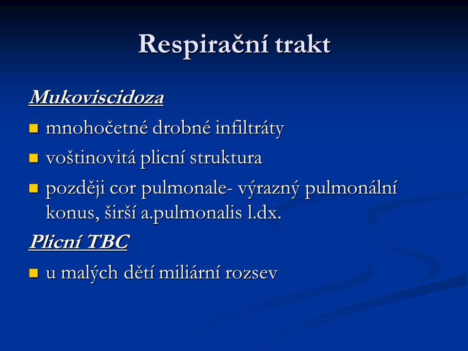 Respirační trakt Mukoviscidoza mnohočetné drobné infiltráty mnohočetné drobné infiltráty voštinovitá plicní struktura voštinovitá plicní struktura poz