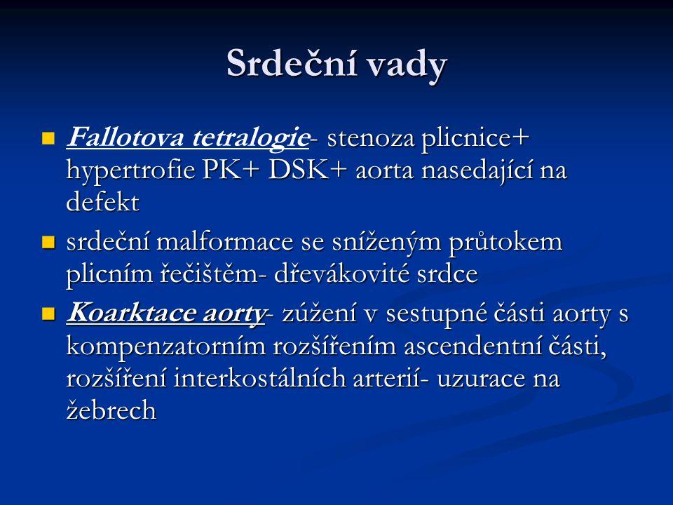 Srdeční vady - stenoza plicnice+ hypertrofie PK+ DSK+ aorta nasedající na defekt Fallotova tetralogie- stenoza plicnice+ hypertrofie PK+ DSK+ aorta na