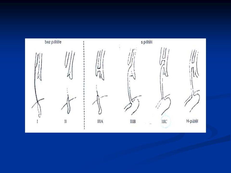 Muskuloskeletální systém Aseptické nekrozy- m.Maydl-Calve-Legg-Perthes nekroza epifýz nekroza epifýz mezi 4.-10.