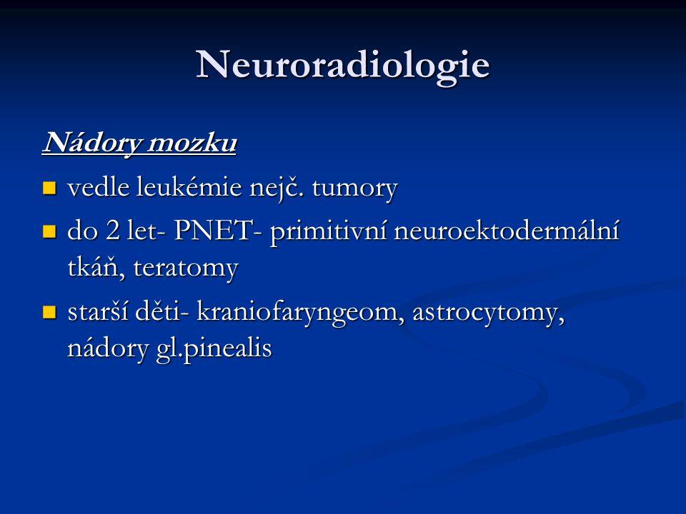 Neuroradiologie Nádory mozku vedle leukémie nejč. tumory vedle leukémie nejč. tumory do 2 let- PNET- primitivní neuroektodermální tkáň, teratomy do 2