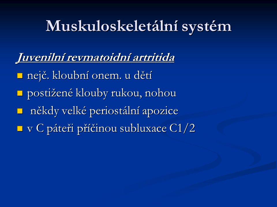 Muskuloskeletální systém Juvenilní revmatoidní artritida nejč. kloubní onem. u dětí nejč. kloubní onem. u dětí postižené klouby rukou, nohou postižené